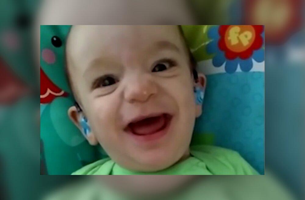 Südantliigutav VIDEO: kurdina sündinud beebi kuuleb esimest korda enda ema häält