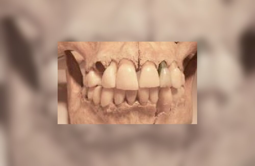 Ligi kahe aastatuhande vanune mõistatus – miks vanaaja brittidel nii terved hambad olid?