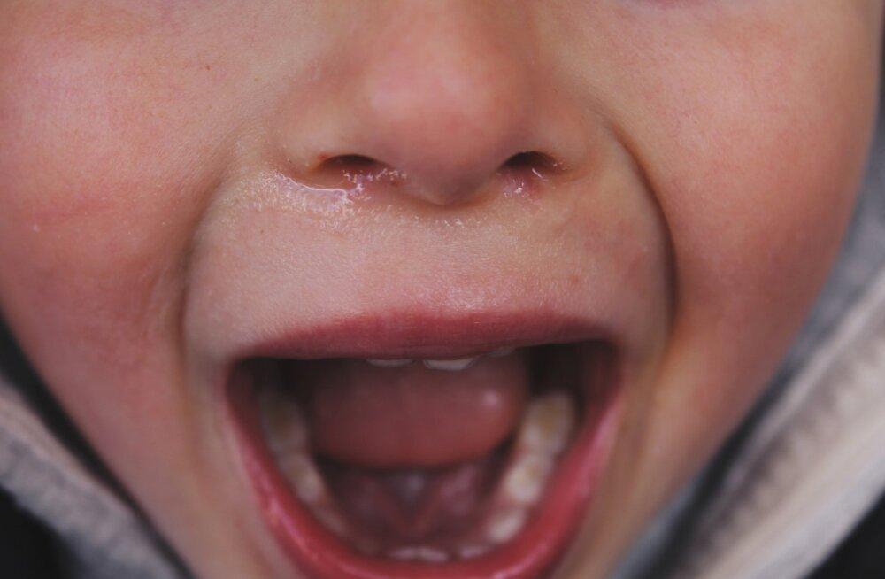 Kuidas toimida, kui ebaõnnestumine tekitab lapses viha ja trotsi ning asi muutub füüsiliselt ohtlikuks?