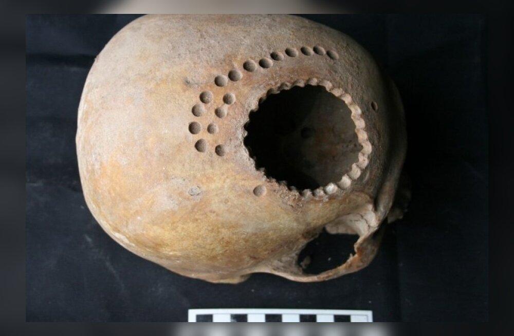 Indiaanlased olid kogenud ajukirurgid juba tuhande aasta eest