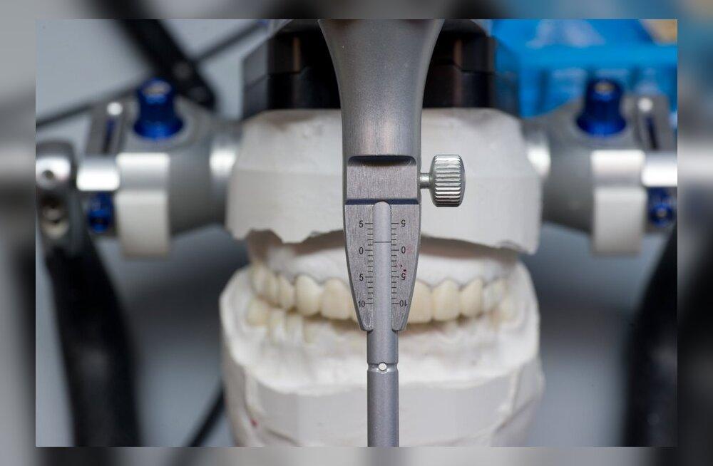 VIDEO: Mis su hammastest saab, kui sa neid pidevalt krigistad?