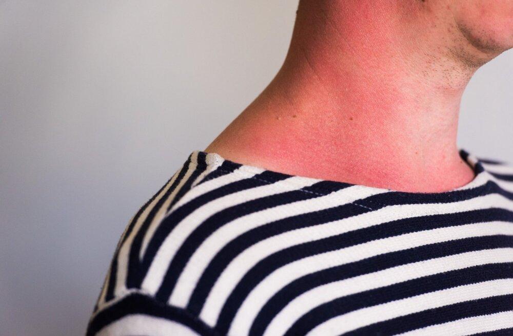 Kuidas hinnata päikesekiirguse ohtlikkust?