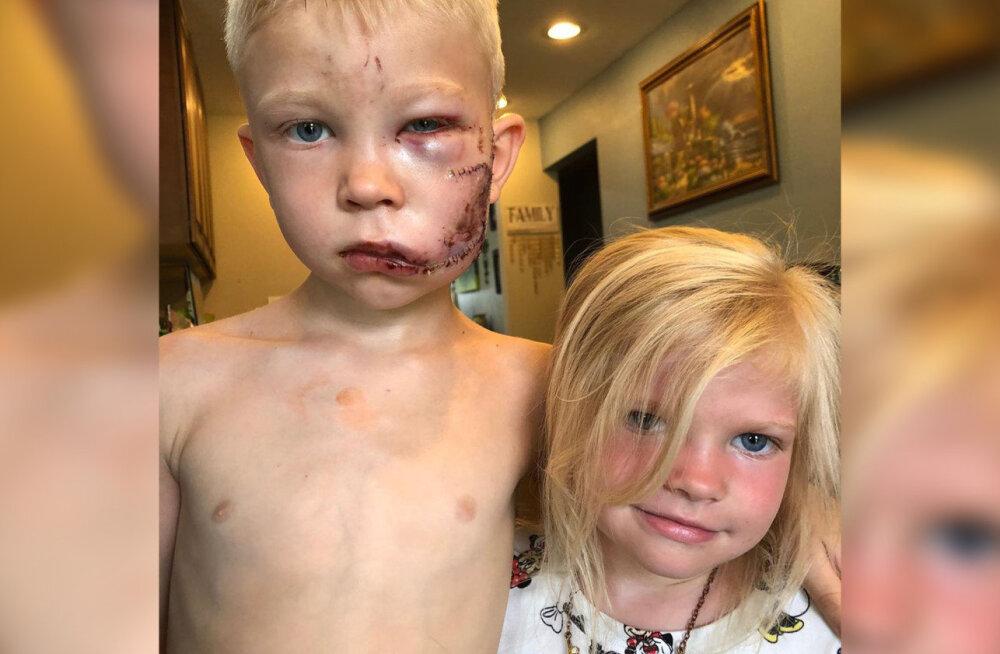 FOTO | Vapper kuueaastane poiss riskis õde päästes eluga: kui keegi pidi surema, siis oleksin see pidanud mina olema
