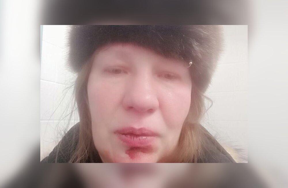 В Таллинне водитель ударил кулаком в лицо гулявшей с детьми женщине