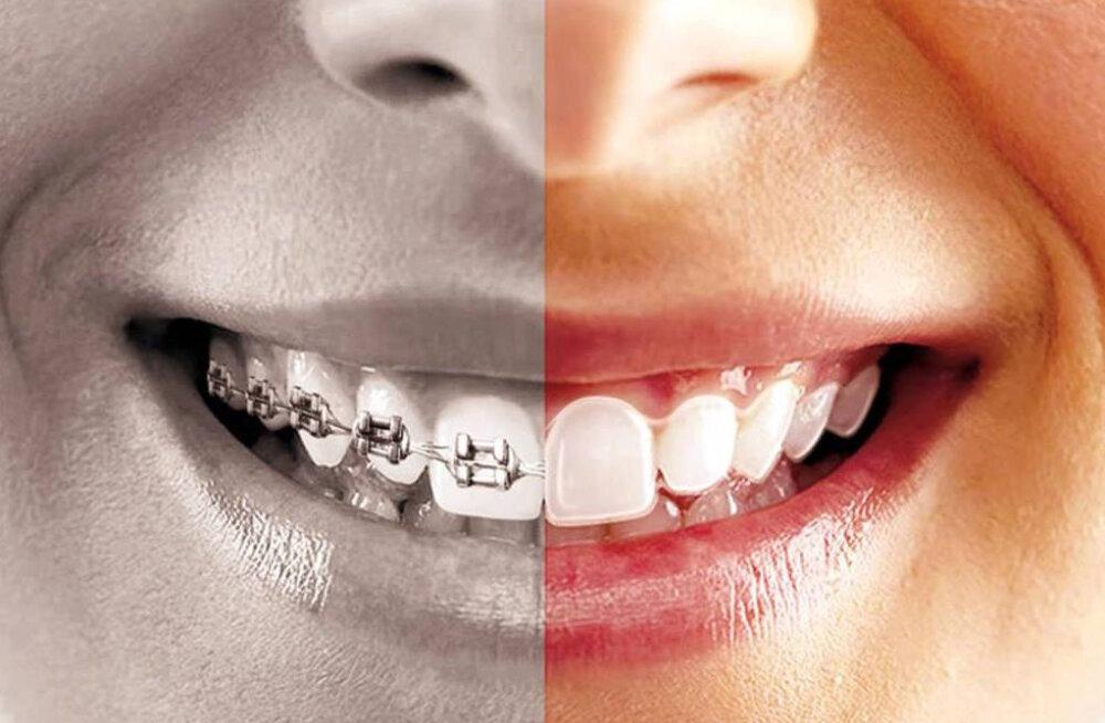Hüvasti breketid ja traadid! Maailma vallutab uus trend, mis aitab hammaste asendit parandada