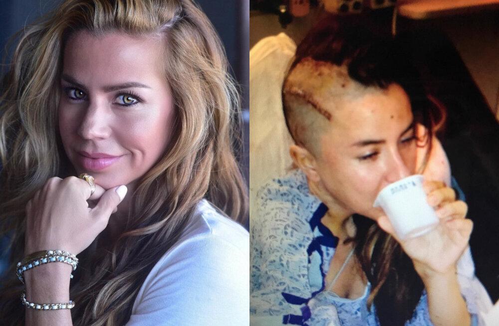 FOTOD | 37aastane Playboy modell jõi 24 tundi päevas viina ja sel olid šokeerivad tagajärjed