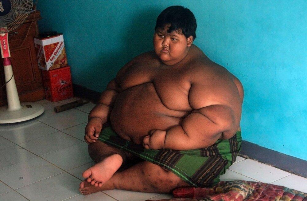 KLÕPS | Milline muutus! Maailma pakseim poiss kaotas 50 kilogrammi
