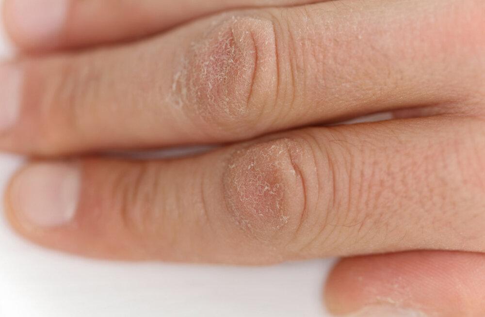 7 väikest märki, mis viitavad organismis tekkinud vitamiinipuudusele