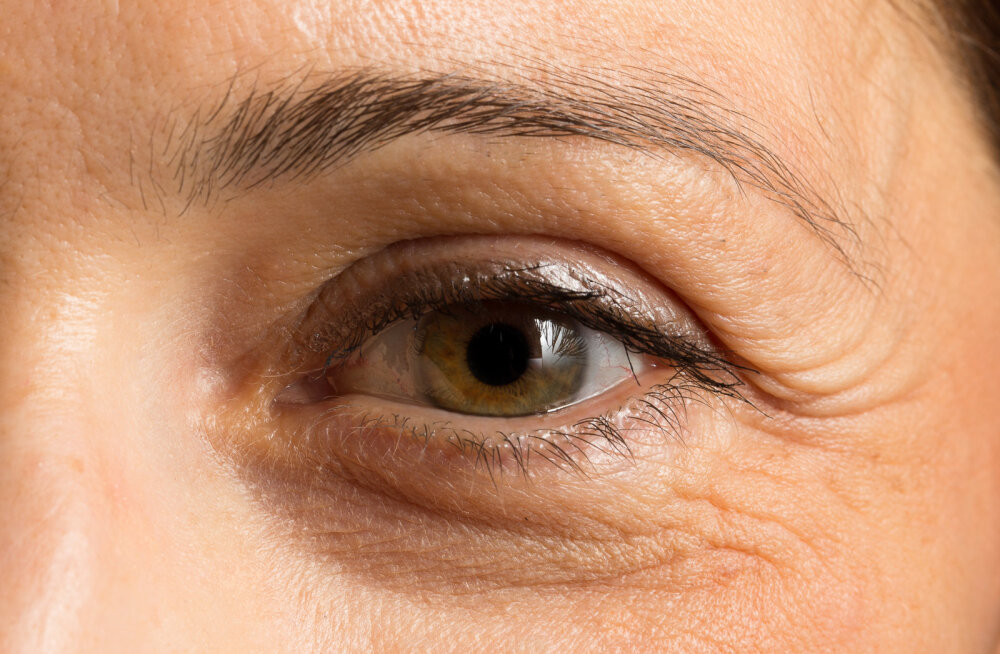 Kui sa arvad, et ei oska oma tumedate silmaalustega enam midagi ette võtta, siis proovi neid nippe
