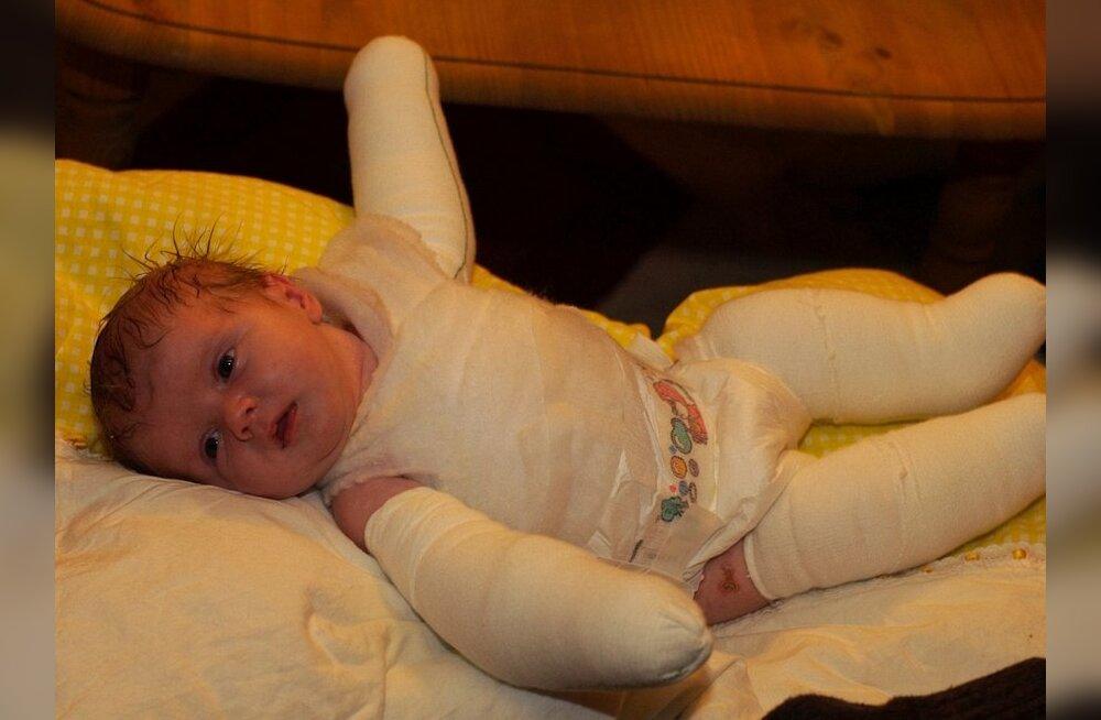 Lastefond toetab raske nahahaigusega Laurat