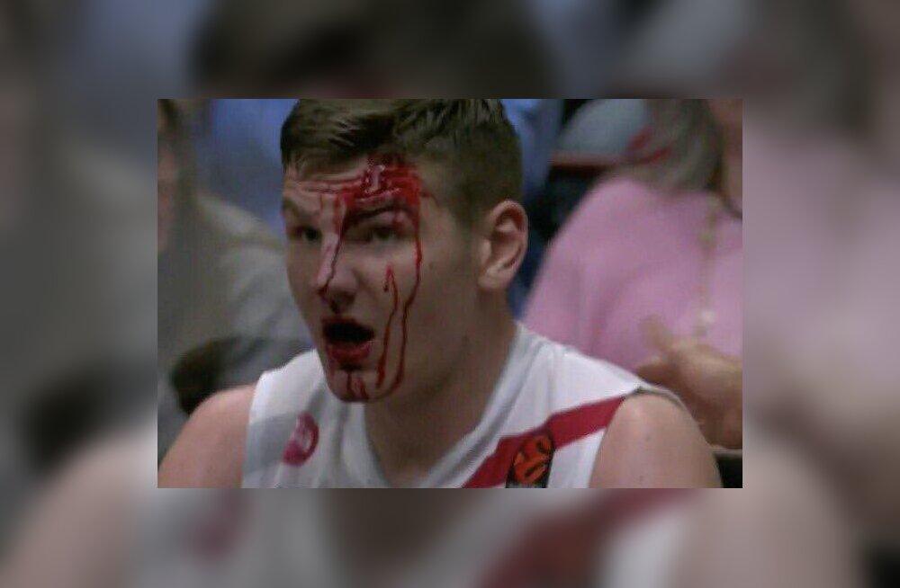 FOTO | Leedu tsentri jaoks oli Milano Olimpia napil võidul verine maitse