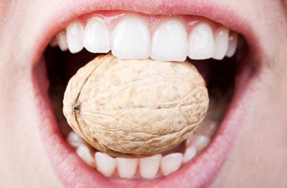 Hambaarstid hoiatavad: need kaheksa toitu mõjuvad suuhügieenile kohutavalt