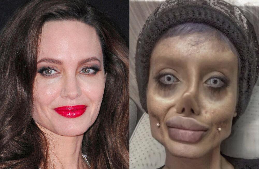 HIRMSAD FOTOD   Teismeline lasi endale teha 50 operatsiooni, et näha välja nagu Angelina Jolie
