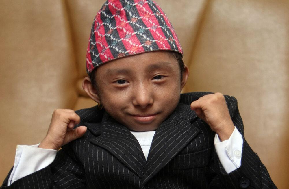ФОТО   Умер самый маленький в мире человек