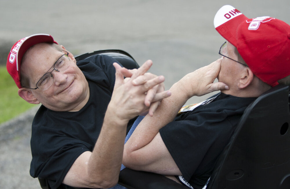 Умерли сиамские близнецы, прожившие рекордно долгую жизнь