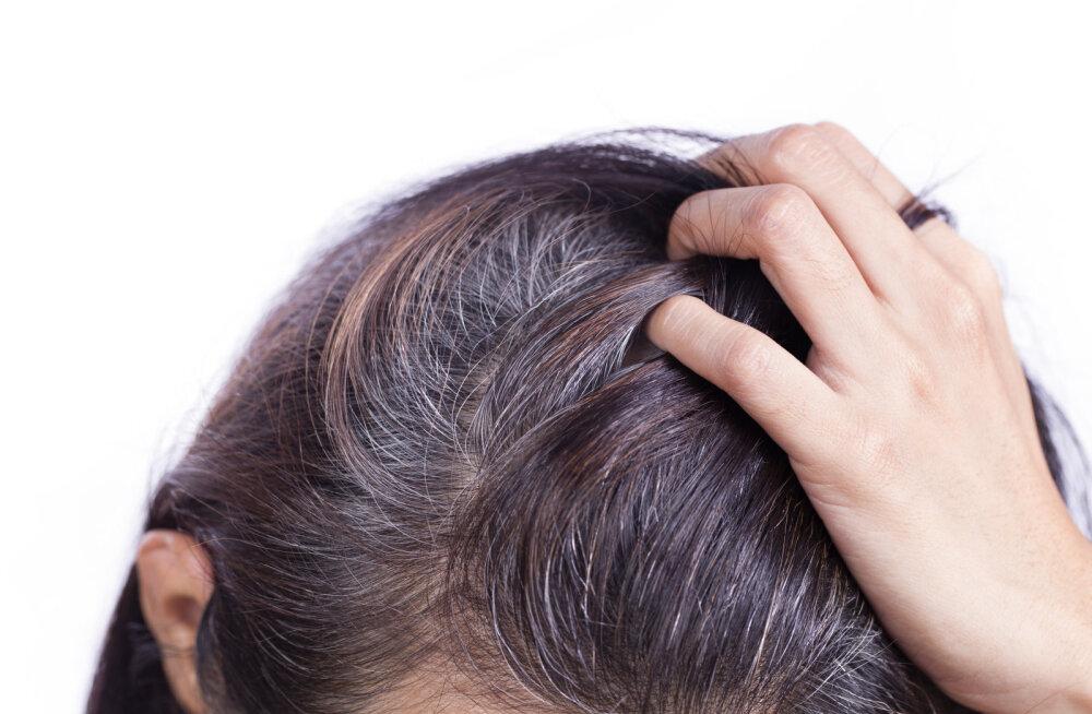 See on tõsi! Stress võib muuta su juuksed halliks ja teadlased selgitasid nüüd välja, miks see nii on