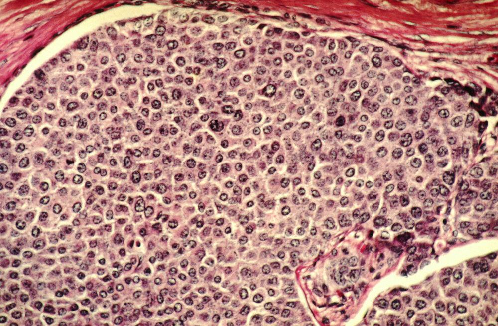 Teadlased suutsid rinnavähirakkude levikule piiri panna, muutes need rasvaks