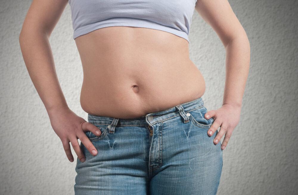 Uuring: normaalkaal koos rasvakihiga kõhul on ohtlikum kui ühtlane rasvumine