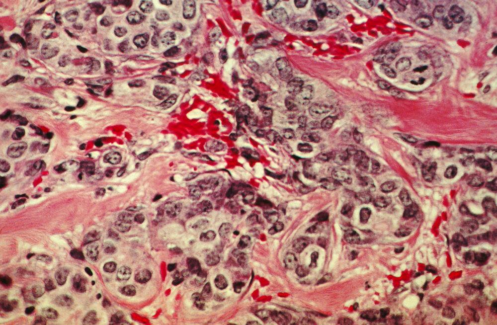 Samm edasi vähivastases sõjas: lülitame vähi välja?