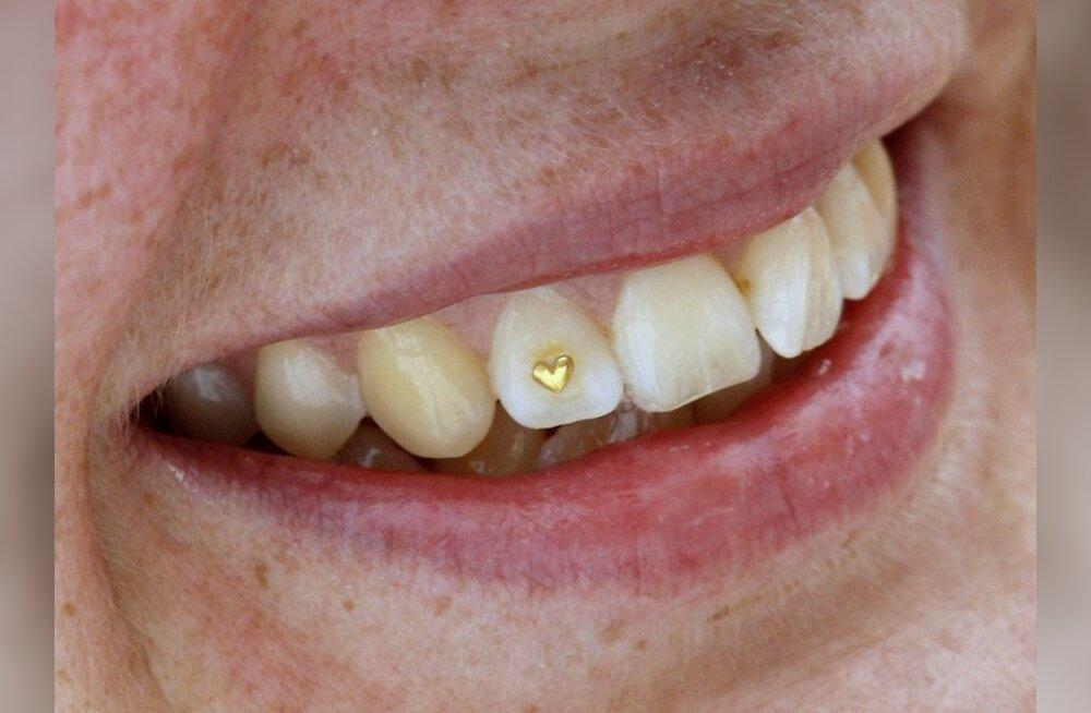 ANNA TEADA, kui palju kulub sul aastas hambaravi peale?