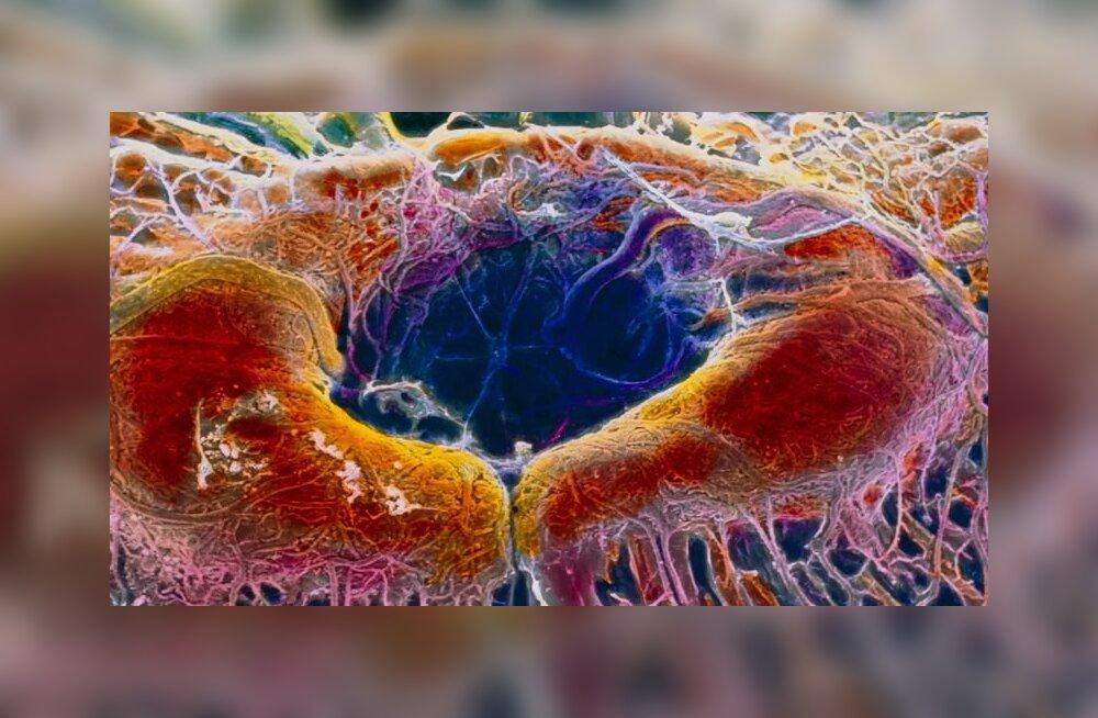 Kurikuulus CRISPR-geeniravi viidi esmakordselt otse inimkehasse