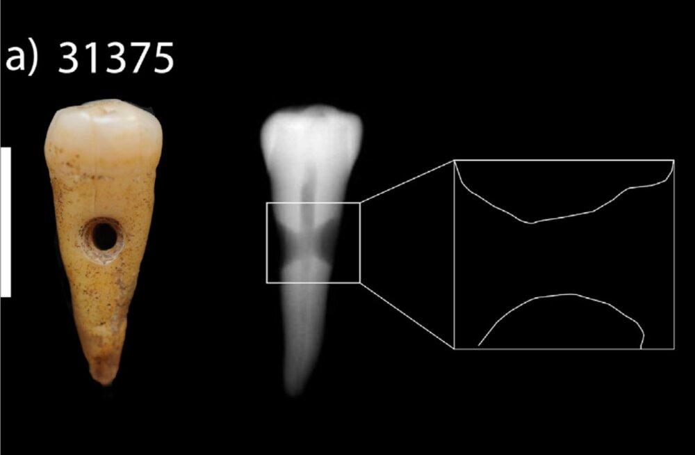 Muistsete inimeste kõhe moemaitse: inimhammaste kandmine ei olnud ennekuulmatu
