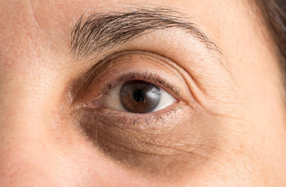 Sul on tumedad silmaalused või lõhenenud huuled? Kas tead, mida see su tervise kohta ütleb?