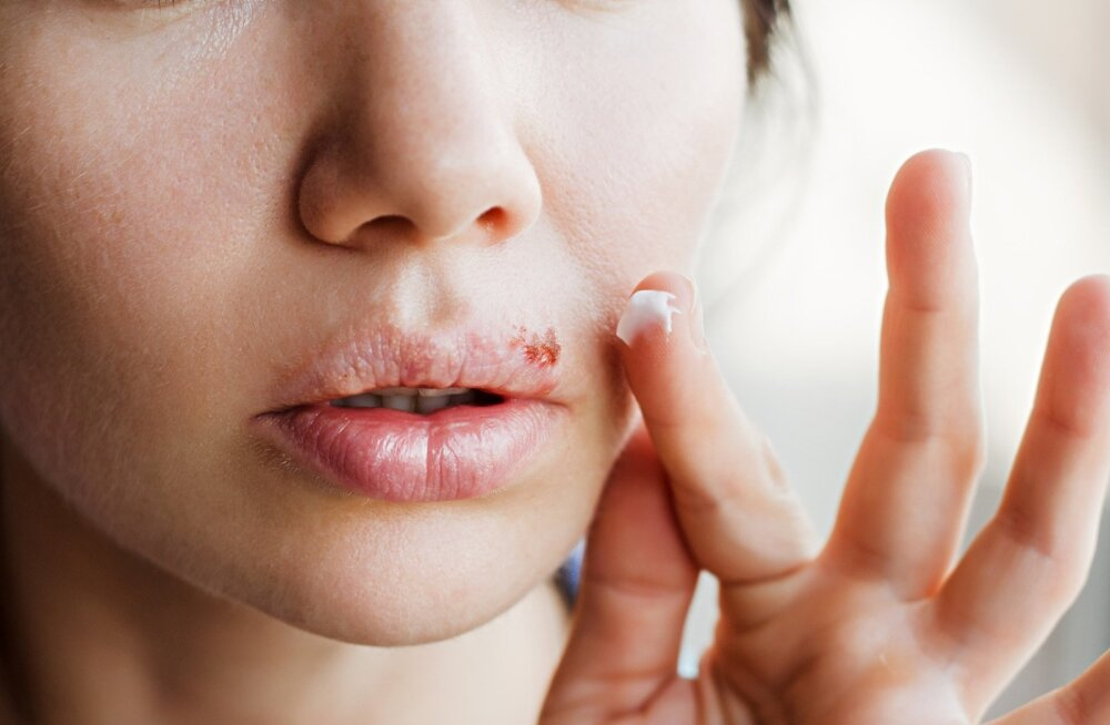 Paikne huuleherpese ravi vähendab küll ebamugavustunnet, kuid ohatise paranemist siiski ei kiirenda