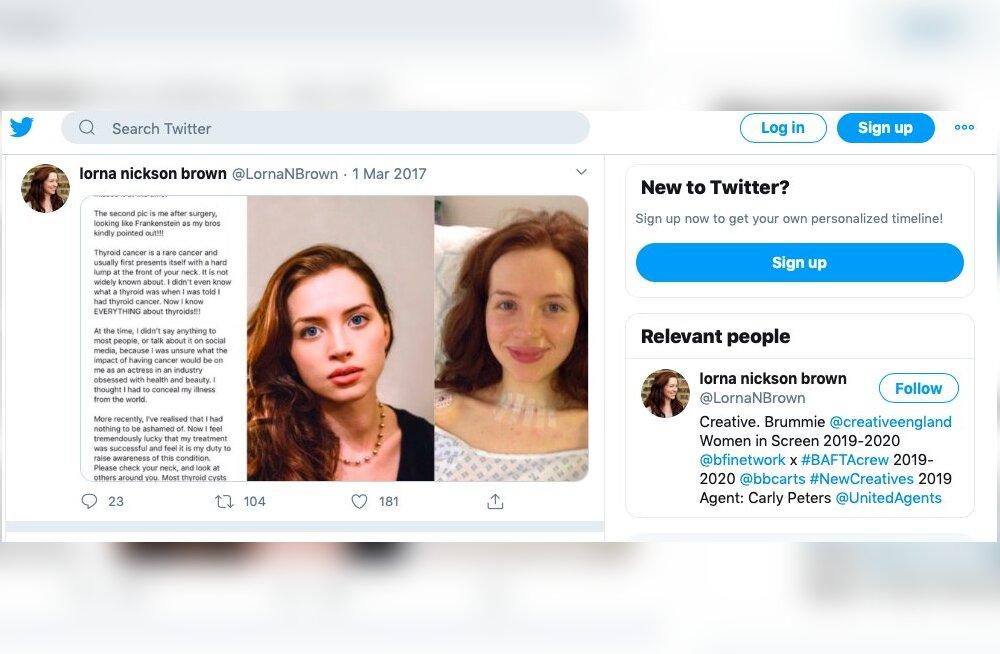 FOTOD | Vähkkasvajaga võitlev naine avaldas endast vana foto, millelt oli ohtlik haigus juba selgelt näha, aga ta ei osanud seda märgata