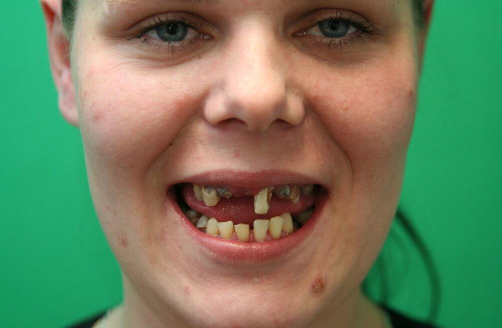 TÄNA! Minu imeline muutumine: 26aastane hambutu ja ülekaaluline Häli ei saa oma välimuse pärast normaalselt elada