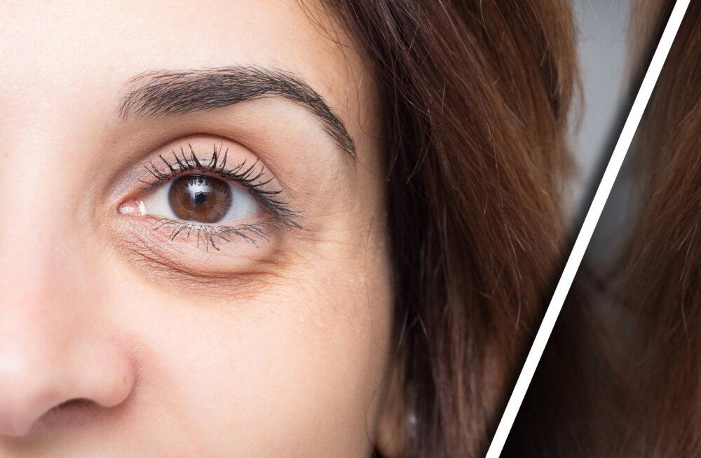 Eksperdid selgitavad: on mitu viisi, kuidas saada lahti tumedatest kottidest silmade all