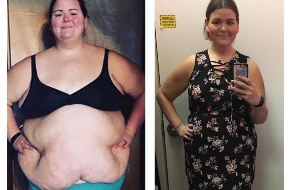 FOTOD | Selle 23aastase naise ausad fotod näitavad, mida 80 kilo kaotamine tegelikult tähendab