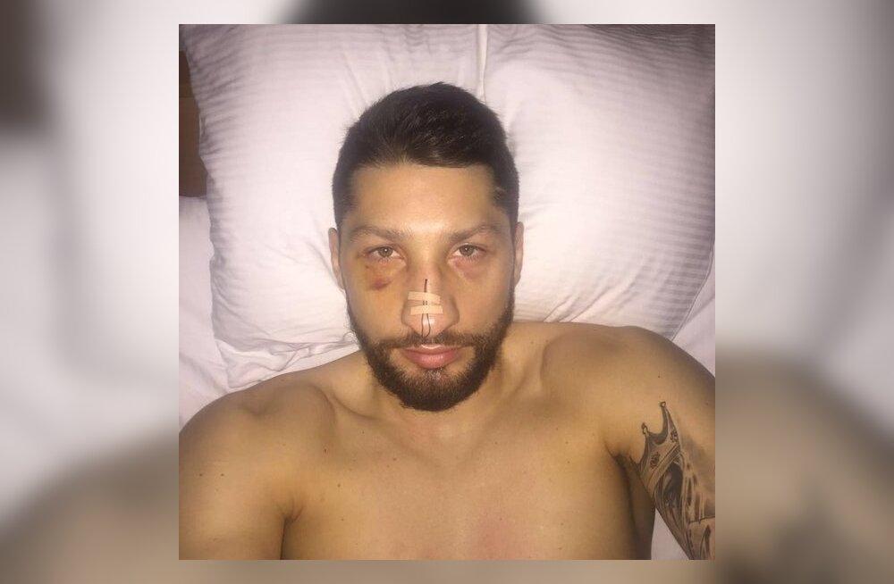 Nikita Kurbanov pärast lõikust