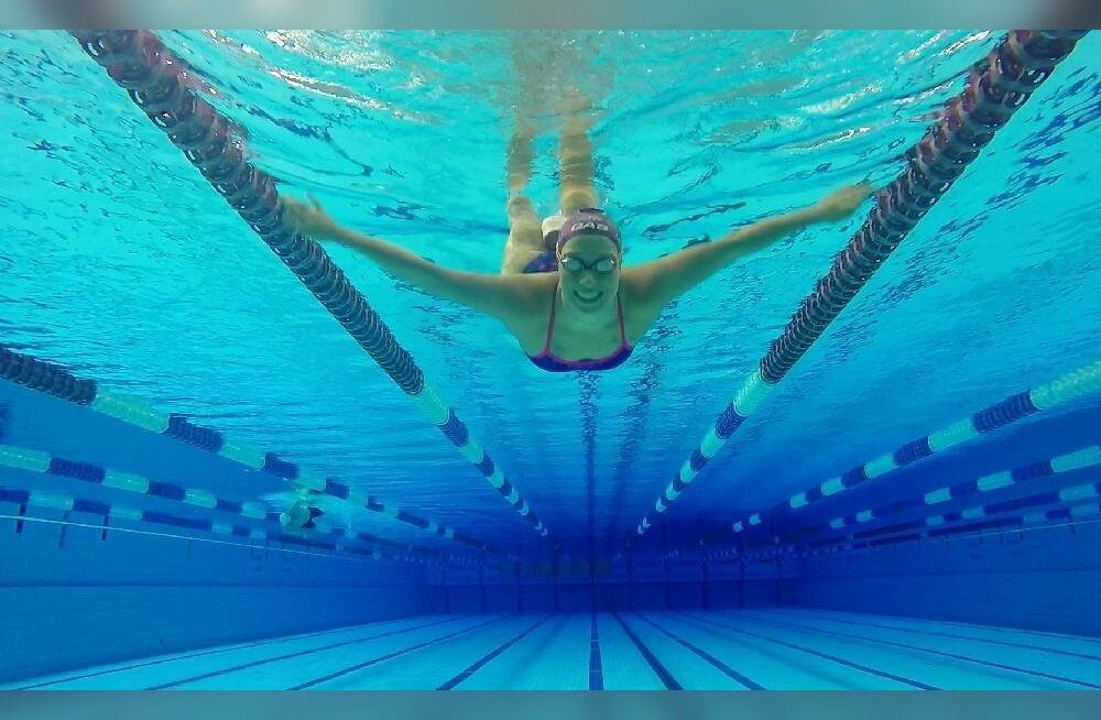 """Austraalia ujuja karmi lõpuga ülikoolipidu: """"Mind uimastati ning kui üles ärkasin, olin ilma parema jalata"""""""