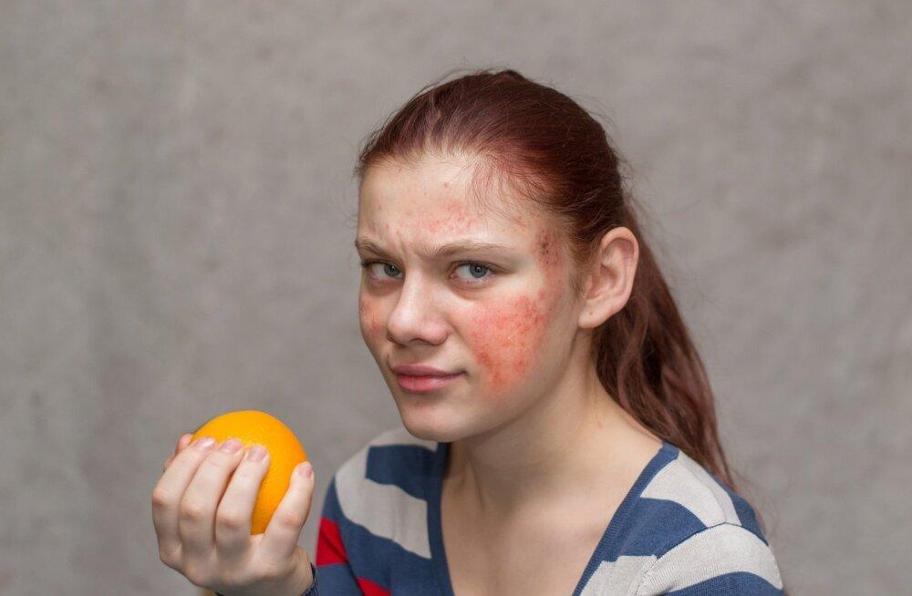 Toidutalumatuse kaebused, enamasti nahalööbe- või seedetraktikaebused, on sageli allergiaga äravahetamiseni sarnased.