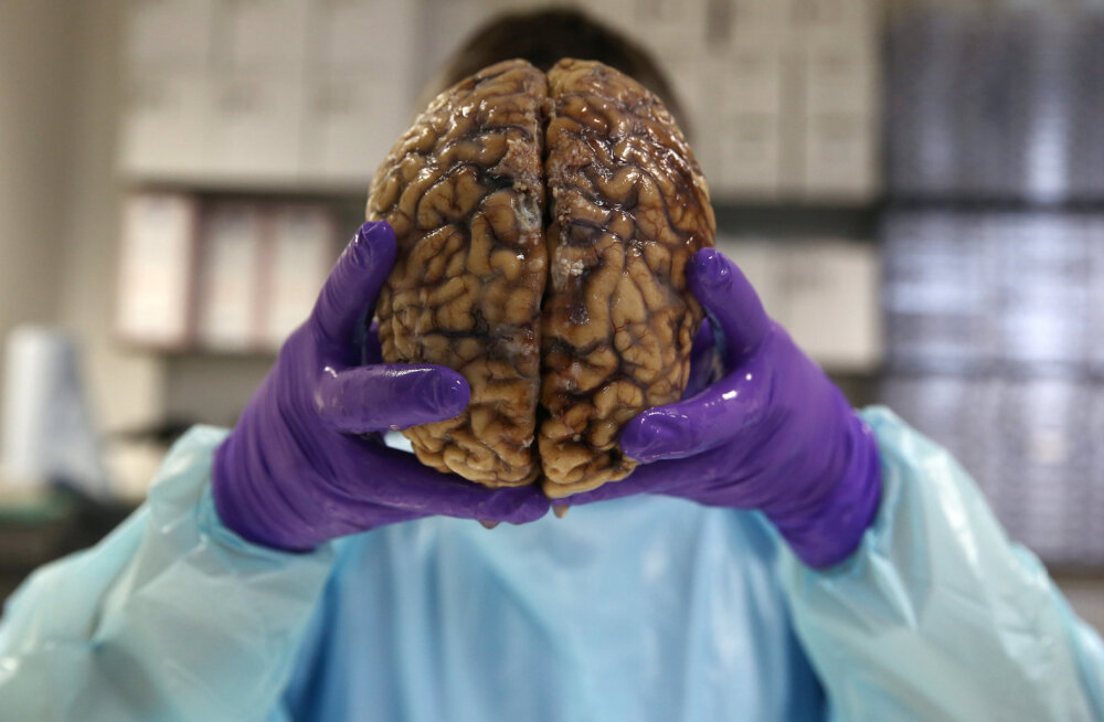 Hea uudis - uut Alzheimeri tõve ravimit testiti üliedukalt inimeste peal