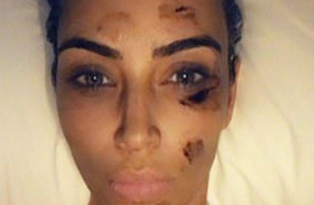 FOTO | Mis on juhtunud Kim Kardashiani näolapiga?