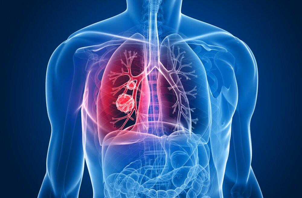 Kopsuvähk on kõige levinum vähitüüp meeste ja naiste seas: varajased sümptomid, mida kindlasti peaks tähele panema
