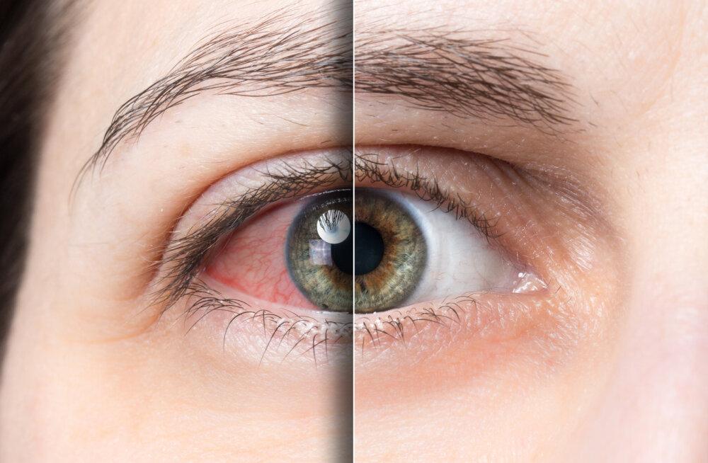 Silmad on kuivad või näed pimeduses väga halvasti? See on märk ühest kindlast vitamiini puudusest