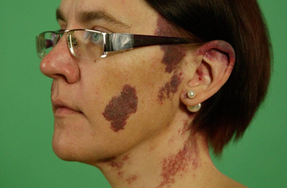 """Puust ja punaseks: mis on n-ö """"tulemärgid"""", mis muutumissaate Ave nahka katsid ja kuidas need nahale tekivad?"""