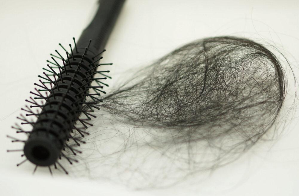 Teeme puust ja punaseks: kui juuksed hakkavad välja langema, siis mida teha? Millal pöörduda arsti poole ja millal sootuks EMOsse?