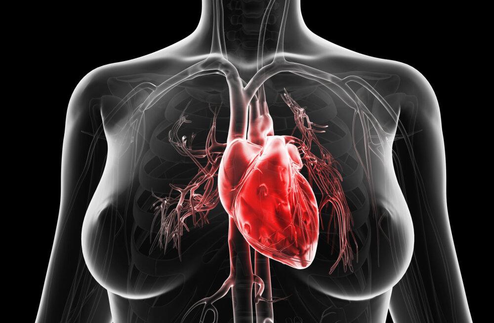 Sinu tervis pole naljaasi! Kuus reeglit, mida järgides hoiad südant infarkti eest