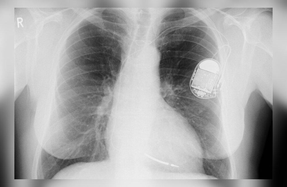 Häkker programmeeris südamestimulaatori jagama surmavaid elektrilööke