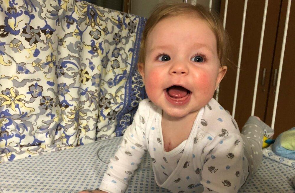 Südamerikkega sündinud pisike Brianna vajab abi olulise jälgimisaparaadi saamiseks