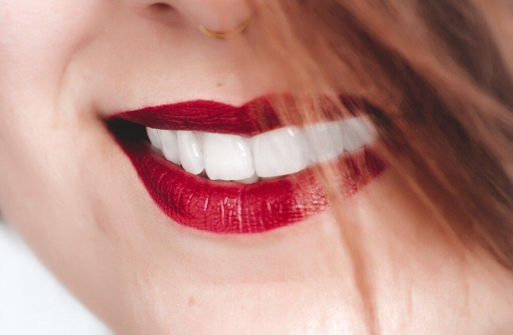 Отбеливание зубов. Так ли это вредно и на что обратить внимание?