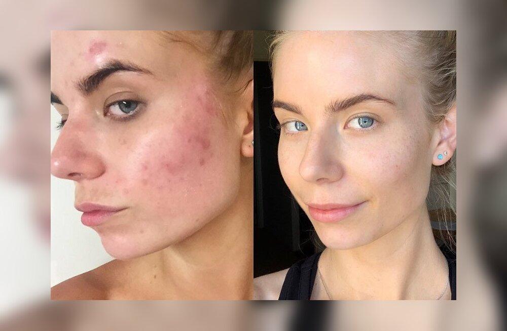 Enne ja pärast FOTOD | Valusa tsüstilise aknega kimpus olnud blogija sai oma naha vaid kuue nädalaga täiesti klaariks!