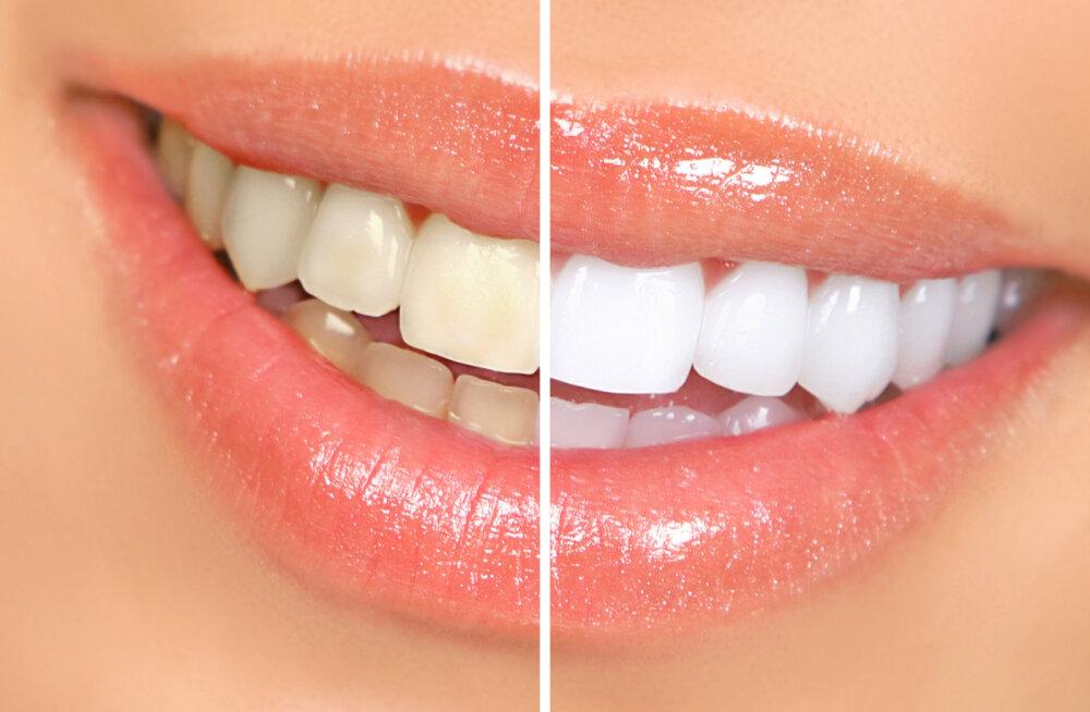 KUULA | Valged hambad ei ole ebareaalne unistus, kuid nende saavutamiseks kulub nii aega, vaeva kui raha