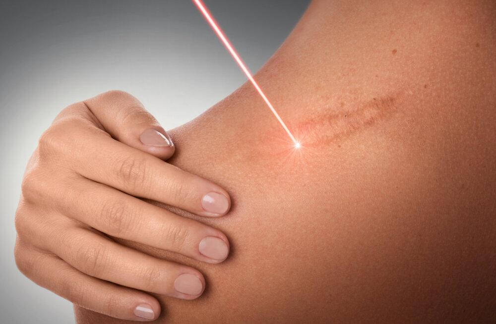 KUULA | Mille poolest on laser skalpellist parem?