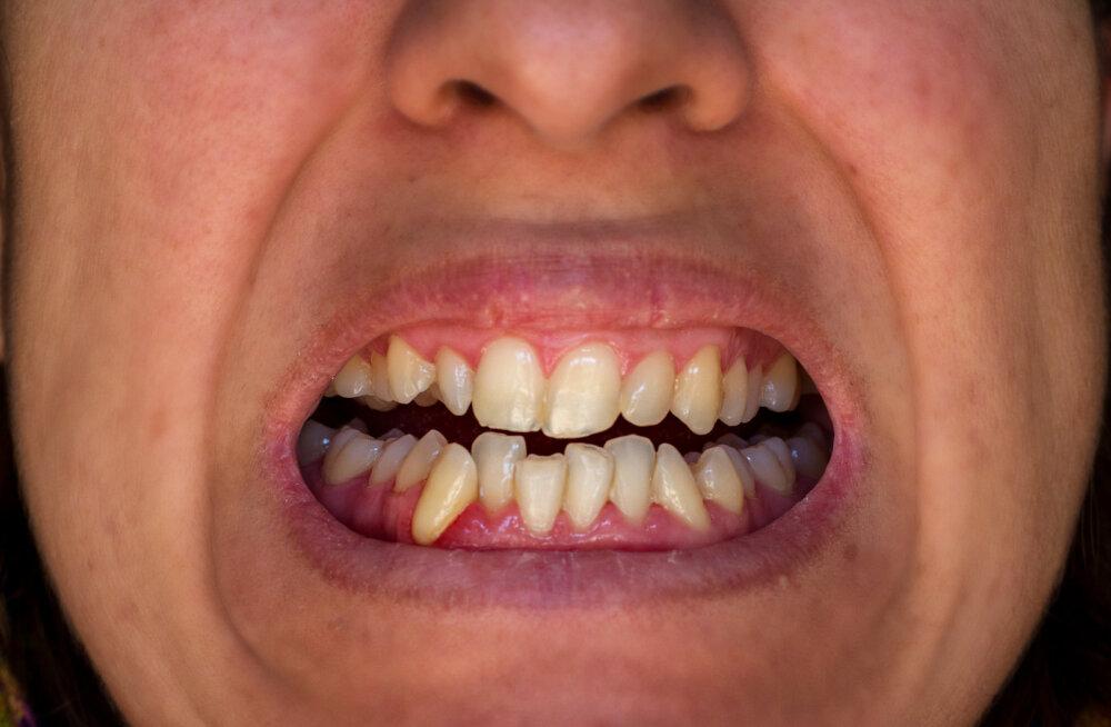 VIDEO | Millal sina viimati hambaarsti juures käisid? Eesti inimestel on üllatuslik põhjus, miks arsti juurde minemisega viivitatakse
