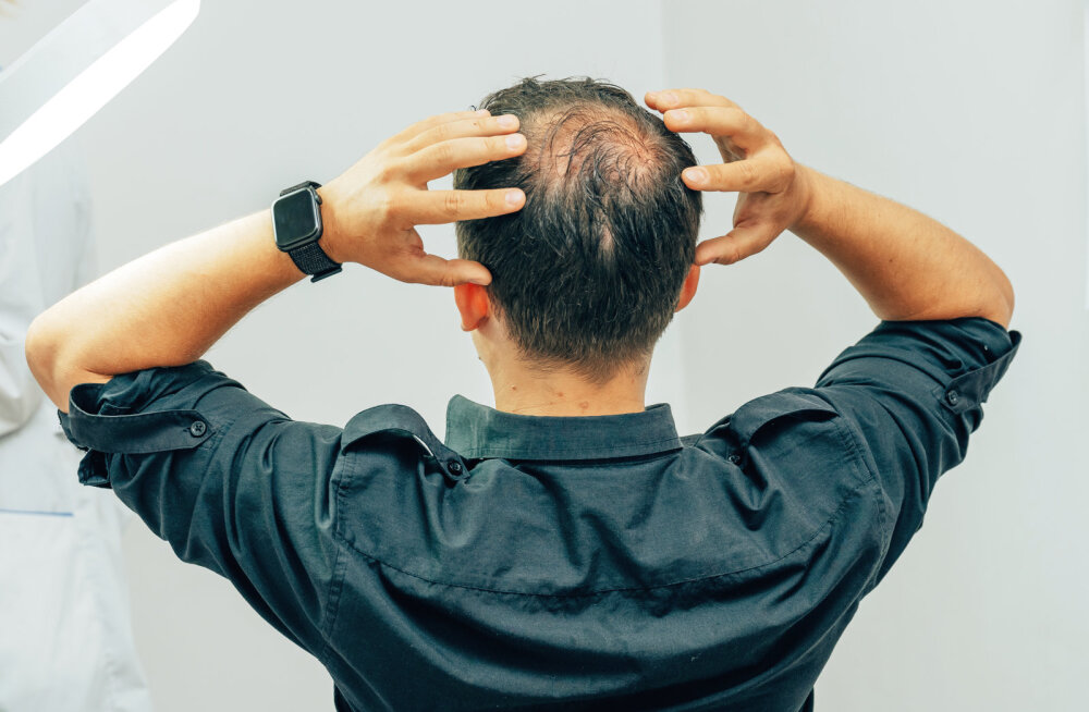 Mehed, pange hoolega tähele! Kui kätte jõuab üks teatud vanus, on 85% teie hulgast suure osa oma juustest kaotanud